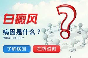 白癜风的发病原因是什么呢